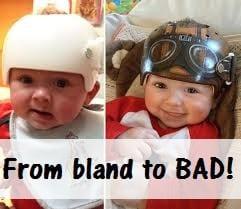 Paula Strawn baby helmet